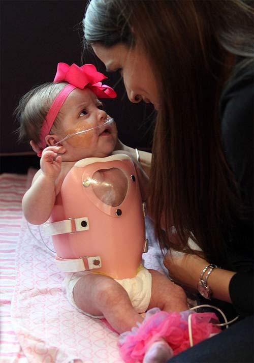 Giải cứu cho bé gái tim ngoài lồng ngực - 1