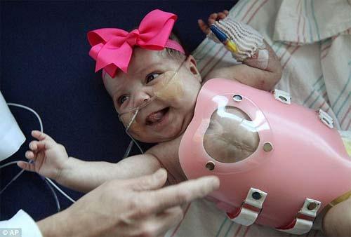 Giải cứu cho bé gái tim ngoài lồng ngực - 2