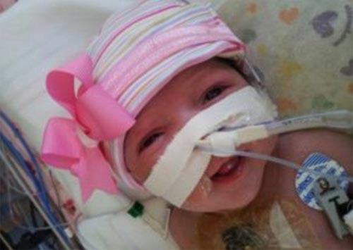 Giải cứu cho bé gái tim ngoài lồng ngực - 5