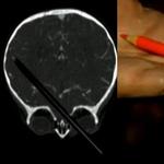 Sức khỏe đời sống - Sống sót thần kỳ sau khi bút chì xuyên não