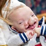 Sức khỏe đời sống - Cứu sống bé trai mặt chẻ làm hai