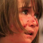 Sức khỏe đời sống - Bệnh lạ bé gái hễ ôm ấp là đau đớn