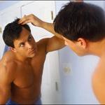 Sức khỏe đời sống - 4 nguyên nhân khiến nam giới hói đầu