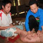 """Sức khỏe đời sống - Bệnh lạ: Người có """"chân voi"""" suốt 28 năm"""