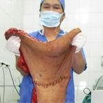 """Sức khỏe đời sống - Bóc tách thành công khối u """"quái"""" ở lưng"""