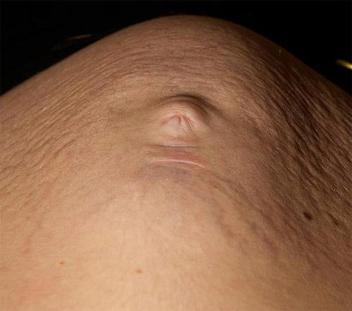Nhìn thấy mặt con qua bụng bầu - 2