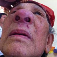 Bị khối u bịt kín mũi do thuốc nam
