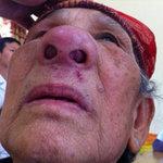 Sức khỏe đời sống - Bị khối u bịt kín mũi do thuốc nam