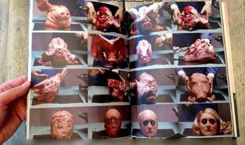 3 ca phẫu thuật thẩm mỹ oái oăm nhất thế giới - 1