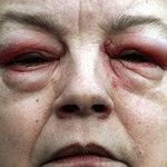 """Sức khỏe đời sống - Hóa thành """"quái vật"""" vì thuốc nhỏ mắt"""