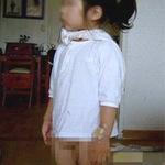 Phi thường - kỳ quặc - Bé gái 4 tuổi có 2 bộ phận sinh dục