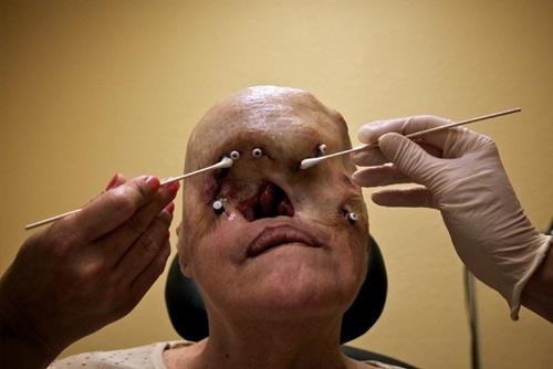 Cận cảnh tái tạo khuôn mặt biến dạng - 1