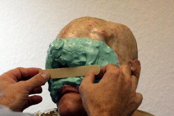 Cận cảnh tái tạo khuôn mặt biến dạng - 2