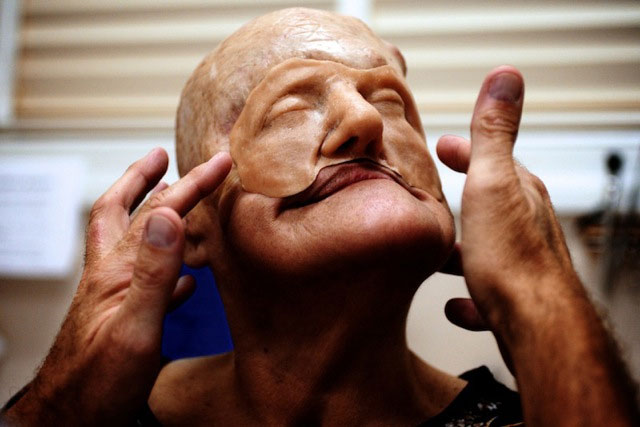 Cận cảnh tái tạo khuôn mặt biến dạng - 6