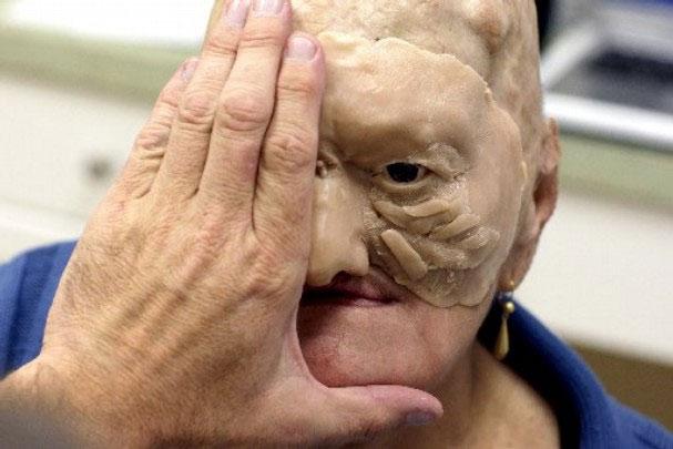 Cận cảnh tái tạo khuôn mặt biến dạng - 8