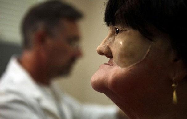 Cận cảnh tái tạo khuôn mặt biến dạng - 10