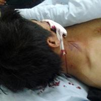 """CA Hà Nội kết luận vụ 141 bị """"tố"""" đánh người"""