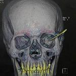 Phi thường - kỳ quặc - 18 năm mới rút dao khỏi hộp sọ