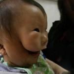 Phi thường - kỳ quặc - 3 em bé thừa bộ phận cơ thể may mắn