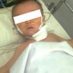 Sức khỏe đời sống - Bé trai 8 tháng tuổi nuốt mảnh kim loại có gắn nhựa
