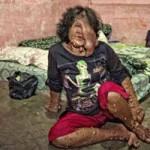 Phi thường - kỳ quặc - Người phụ nữ nghìn mụn trùm cơ thể