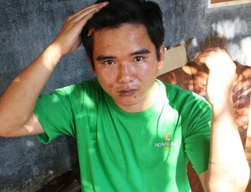 Thiếu úy CA trại giam đánh công an xã nhập viện - 1