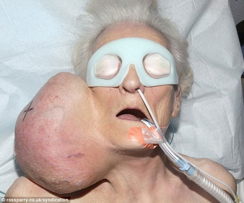 """Bà cụ """"mắc cỡ"""" gặp bác sĩ vì khối u 2 kg - 1"""