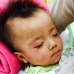 Tin tức trong ngày - GS Nguyễn Trần Hiển: Vắc xin ngừa sởi rẻ, an toàn