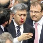 Tin tức trong ngày - Nghị sĩ Thổ Nhĩ Kỳ đánh nhau sứt đầu mẻ trán