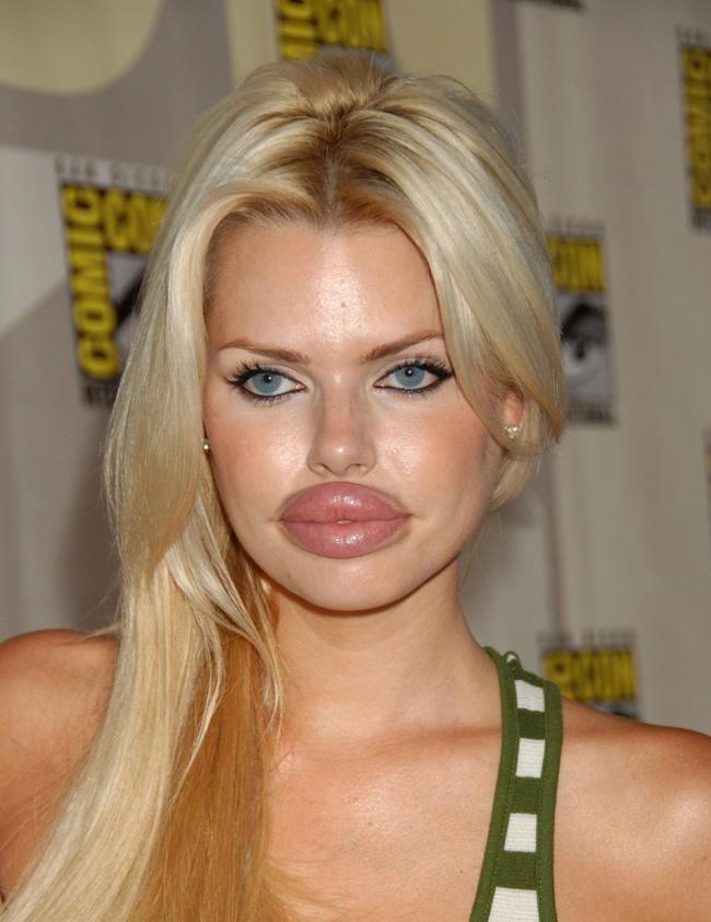 Một đôi môi bị bơm căng một cách bất thường khiến cô gái này trở nên kém đẹp