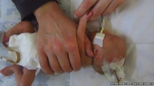 Y tá tự ý rút ống thở, bé sơ sinh tử vong - 1