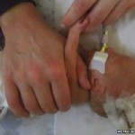 Sức khỏe đời sống - Y tá tự ý rút ống thở, bé sơ sinh tử vong