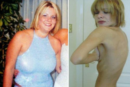 Cô gái từng tự tử vì bộ ngực 101cm - 2