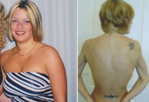 Cô gái từng tự tử vì bộ ngực 101cm - 3