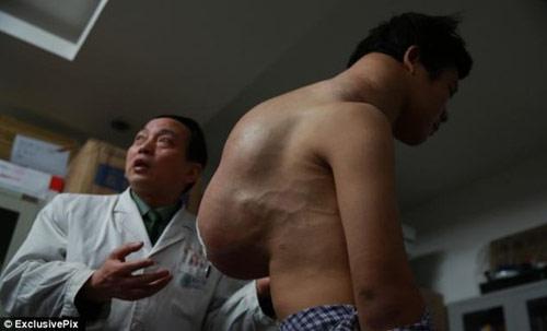 Nam thanh niên có khối u nặng 10 kg - 1