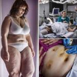 Làm đẹp - Cô gái 31 tuổi cắt dạ dày để giảm béo