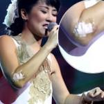 Ngôi sao điện ảnh - Hồng Nhung bị thương vẫn hát cực sung