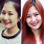Làm đẹp - Sao Việt: Người xấu, kẻ đẹp sau thẩm mỹ mũi
