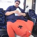 Phi thường - kỳ quặc - Người đàn ông có của quý 50kg qua đời