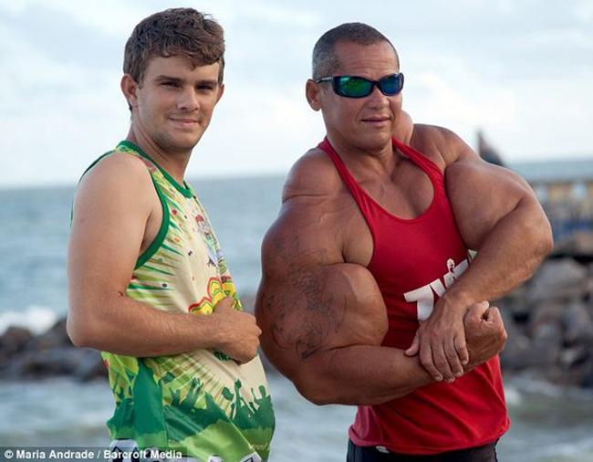 Arlindo de Souza đã tự tay tiêm hợp chất gây chết người để có được bắp tay khủng với số đo lên tới 73,5cm.