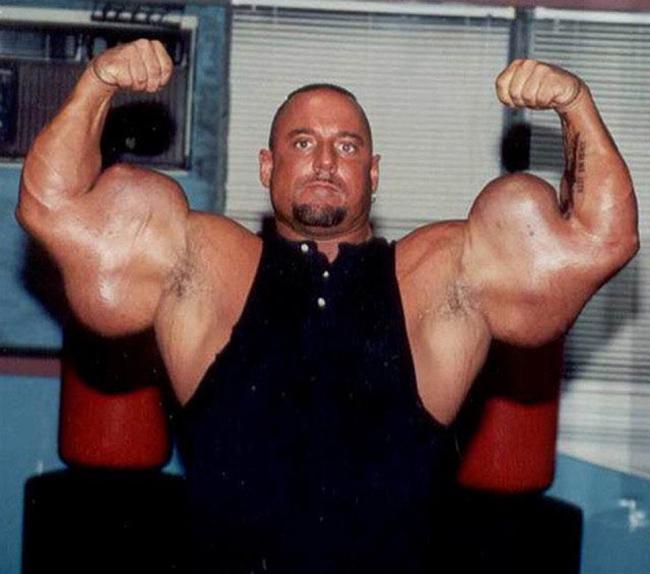 Gregg Valentino, từng sở hữu bắp tay to nhất thế giới nhưng cuối cùng bắp tay của ông đã bị nổ.