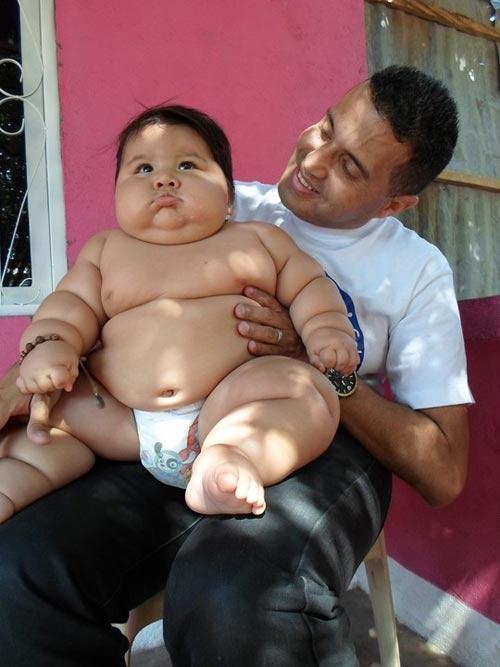 Bé 8 tháng có cân nặng của trẻ 6 tuổi - 2