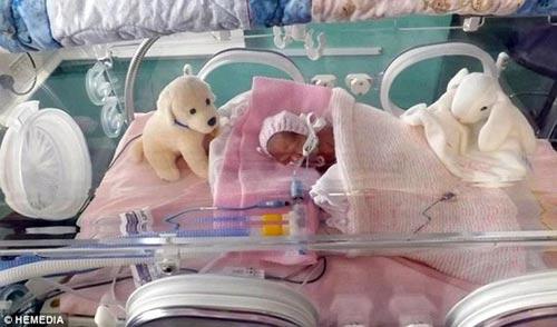 Bé sơ sinh 24 tuần, nặng 538 g - 1