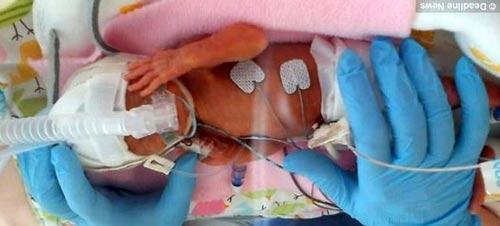 Bé sơ sinh 24 tuần, nặng 538 g - 2