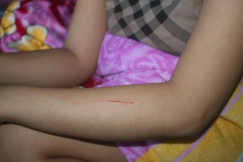 Thêm 2 trường hợp nghi bị rạch tay ở Khánh Hòa - 1