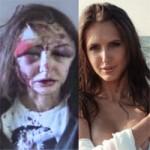 Thời trang - Người mẫu bị đại gia đánh tới biến dạng mặt