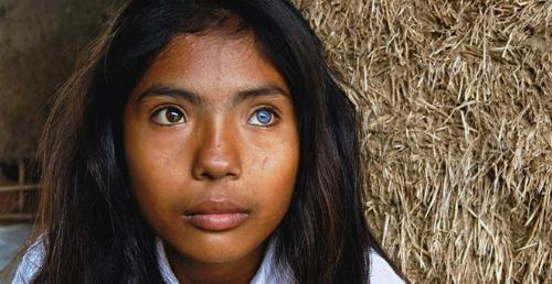 Cô gái có đôi mắt hai màu kỳ lạ ở Ninh Thuận - 3