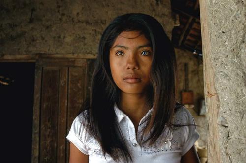 Cô gái có đôi mắt hai màu kỳ lạ ở Ninh Thuận - 2