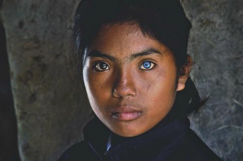 Cô gái có đôi mắt hai màu kỳ lạ ở Ninh Thuận - 1