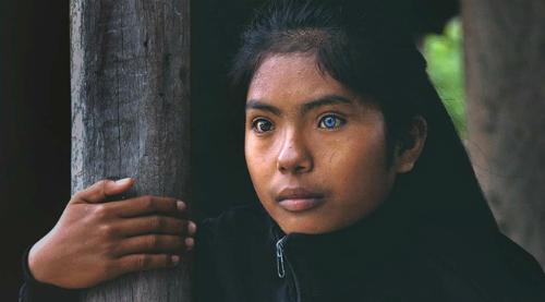 Cô gái có đôi mắt hai màu kỳ lạ ở Ninh Thuận - 5